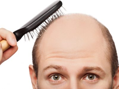 Understanding Hair Loss — the Basics