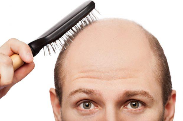 Understanding Hair Loss — the Basics