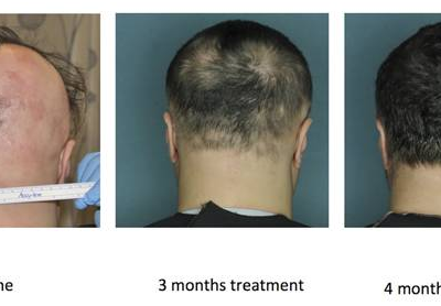 New drug helps some bald patients regrow hair