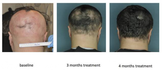 New drug helps some bald patients regrow hair